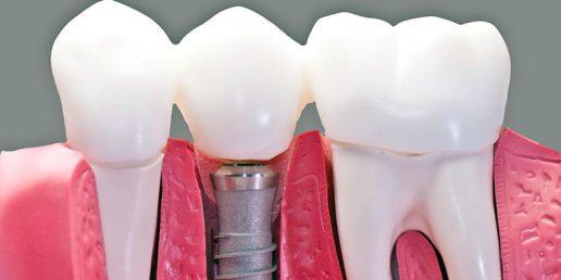 dantu-implantai-paslauga