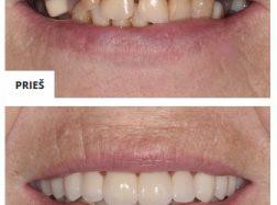 Dantų protezavimas, kas tai?