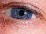 Akių sausumui gydyti – ateities technologijos