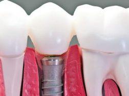 Dantų implantai Šiauliuose: kaip rasti palankiausią galimybę?